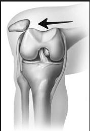 89ad99f95a Patella Dislocations and Treatment | Steve A. Mora, MD