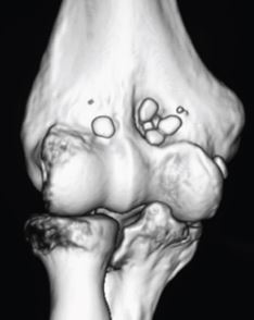 Elbow LB CT scan