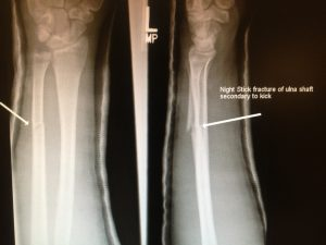 Ulna shaft fracture in cast.