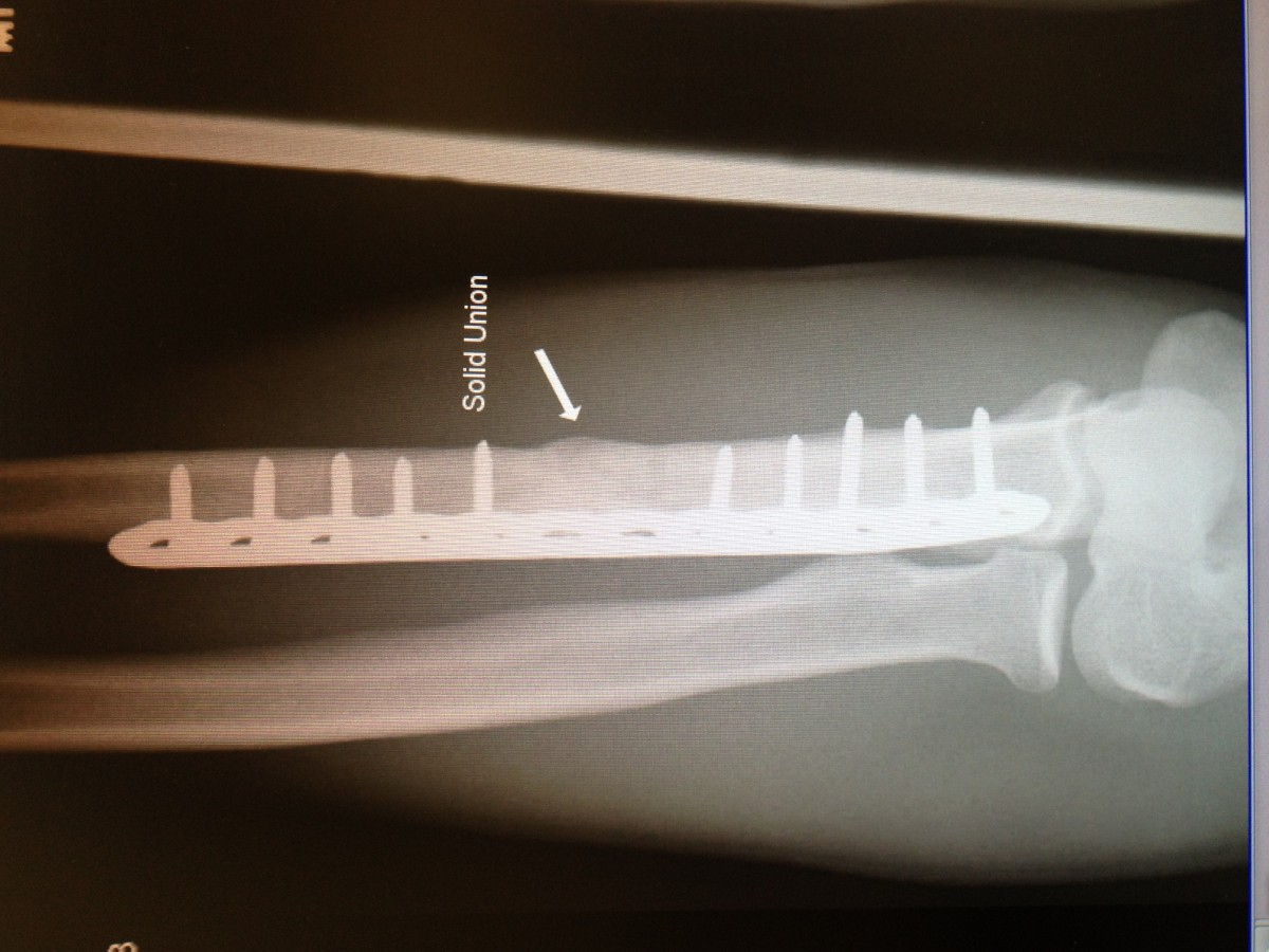 Ulna shaft, healed with plate