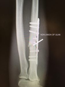 Ulna fracture non union after plating